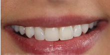 An After Image Of A Patient's Smile