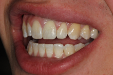 After Image Of A Patient's Teeth