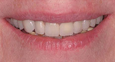Another Patient After Dental Implants