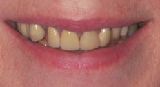 Another Patient Before Dental Implants