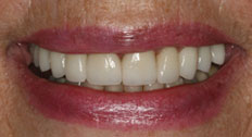An After Image of Dental Implants