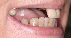 A Patient's Teeth Before An Implant Procedure