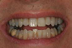 Invisalign Case 3 Before