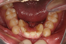 Patient's Teeth Before Operation