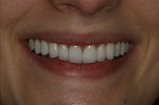 Veneers Image After Case 3