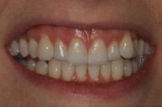 Veneers Image Before Case 3