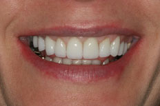 Veneers Image After Case 4