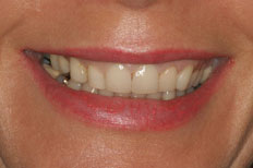 Veneers Image Before Case 4