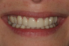 Veneers Image After Case 5
