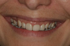 Veneers Image Before Case 5