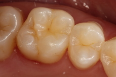 White Fillings Image 3