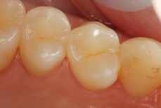 White Fillings Image 4