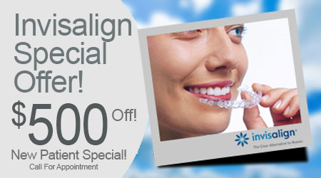Our 500 off Special For Invisalign