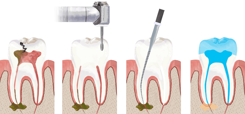 Root Canal Procedure Explained