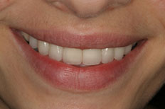 After Image of Porcelain Veneer Case 1