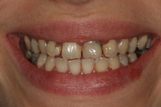Before Image of Porcelain Veneer Case 1
