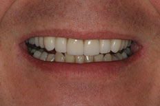 After Image of Porcelain Veneer Case 2