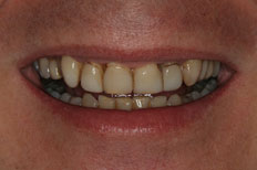 Before Image of Porcelain Veneer Case 2